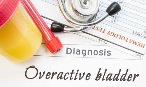 HOW CAN I STOP MY OVERACTIVE BLADDER?